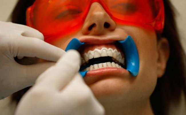 Как отбеливают зубы в Краснодаре